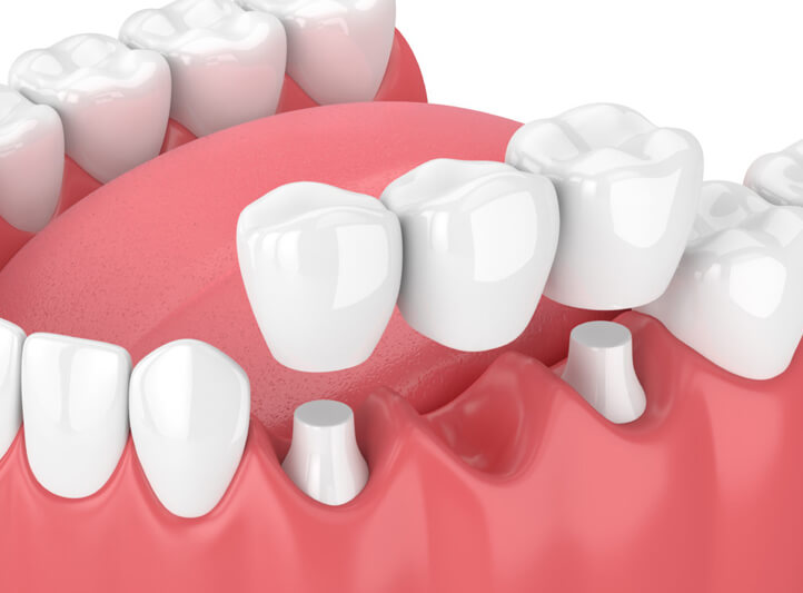 Crowns And Bridges Procedure